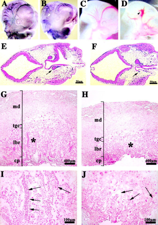 Vascular defects in the placenta and head of endothelial β-catenin– embryos. Whole-mount immunohistochemistry for anti-PECAM antibody in E10.5 embryos (A and B). In the head, mutant embryos (B and D) compared with controls (A and C) show a less organized vascular network with vessels of irregular diameter and shape. In mutants, blind ending vessels (B, arrowhead) and lacunae-like bifurcations (D, arrowhead) can be often observed. PECAM and nuclear fast red staining in two serial transverse sections, separated by 60 μm, of E10.5 mutant head (E and F). The arrows point to the diameter of the internal carotid artery, which is significantly different in the two sections. Placenta histology of control (G and I) and mutant E10.5 embryos (H and J) shows that, although the maternal decidua (md), the chorionic plate (cp), and the trophoblast giant cells (tgc) are comparable, the labyrinthine layer (lbr) is reduced in mutants. I and J represent higher magnifications of the zones indicated by the asterisks in G and H, respectively. Embryonic blood vessels (arrows), are substantially more abundant in the labyrinthine zone of the control (I), than in the mutant (J).