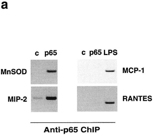 A subset of NF-κB–dependent promoters is not constitutively accessible to NF-κB, but accessibility can be increased by adequate stimulation. (a) Raw 264.7 macrophages were transfected with a p65 expression vector or empty vector. Under these experimental conditions, transfected p65 is constitutively nuclear (and can activate transcription from naked cotransfected DNA). ChIP assay with an anti-p65 antibody shows that p65 is recruited only to MnSOD and MIP-2 promoters but not on the MCP-1 and RANTES promoters. Stimulation with LPS for 2 h is followed by NF-κB recruitment to the latter promoters. (b) IFN-γ pretreatment induces hyperacetylation of the MCP-1 promoter and makes it immediately accessible to NF-κB. Raw 264.7 cells were prestimulated with IFN-γ for 2 h and then stimulated with LPS for 20 or 40 min. ChIP assay was performed with anti-p65 antibody or anti-AcH4 serum. Control dilutions of IP supernatant in the anti-AcH4 ChIP are shown. Similar results were obtained with the RANTES promoter.