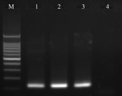 Sporozoite detection by PCR. Ethidium bromide-stained PCR products from the nested PCR approach for sporozoite detection. Lane M: 100 bp ladder; lane 1: positive control; lanes 2–3: pooled samples from Motuo County, TAR; lane 4: negative control.