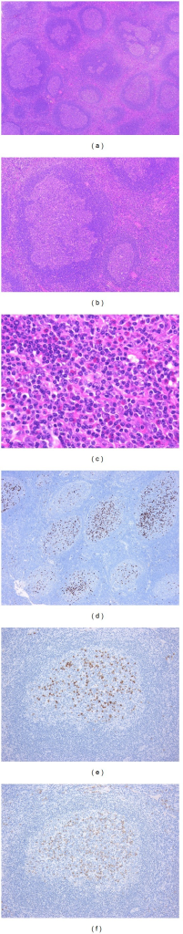 IgG4-related lymphadenopathy (type IV). (a) The lymph node shows marked follicular hyperplasia with PTGC. (b) The PTGCs appear as round to oval structures 2-3 times the diameter of the other reactive follicles. (c) Numerous eosinophils infiltrate the interfollicular zone. (d) The majority of IgG4+ plasma cells reside in the germinal centers, with a small number present in the interfollicular zone. (e), (f): The IgG4+/IgG+ plasma cell ratio is >40% (e: IgG4-immunostain, f: IgG-immunostain).