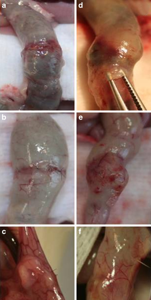 Macroscopic findings in the colonic anastomosis on days 1 (a and d), 3 (b and e), and 5 (c and f) in the control (left side) and fibrin glue (right side) groups