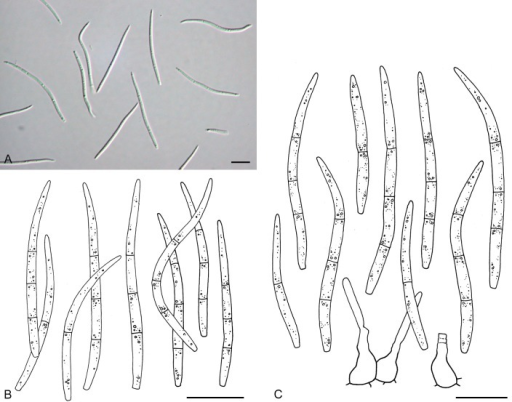 Septoria convolvuli. A, B. Conidia in planta (CBS H-21244). C. Conidia and conidiogenous cells on OA (CBS 102325). Scale bars = 10 μm.