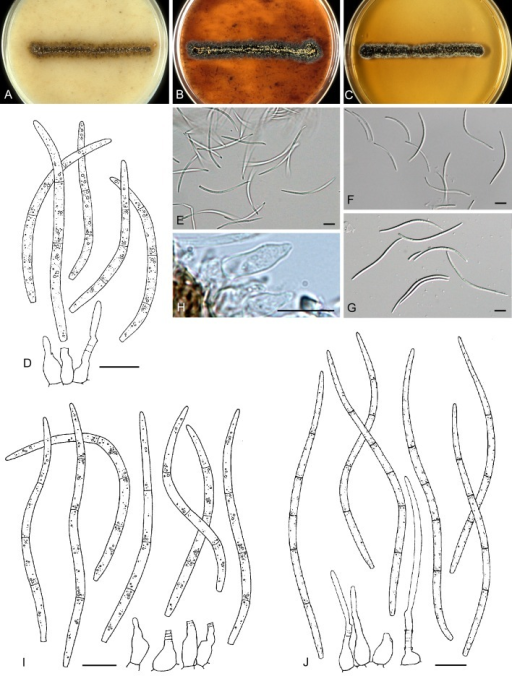 A-E. Septoria senecionis. A-C. Colonies CBS 102381 (15 °C, nUV). A. On OA. B. On CHA. C. On MEA. D. Conidia and conidiogenous cells in planta (CBS H-21219, epitype). E. Conidia in planta (CBS H-21219). F-J. Septoria putrida. F, G. Conidia in planta (CBS H-21174). H. Conidiogenous cells in planta (CBS H-21174). I. Conidia and conidiogenous cells in planta (CBS H-21174). J. Ibid., on OA (CBS 109088). Scale bars = 10 μm.
