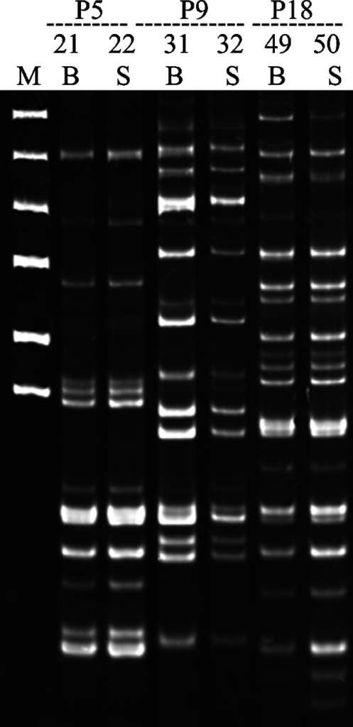 Representative results of monitoring the spread of bacteria within patients by using the PCR MP technique. The isolates shown represent three patients: genotype H11 from patient P5, genotype H20 from patient P9, and genotype H22 from patient P18. Lanes marked by numbers indicate the number of the isolate shown in Table 5. Lanes marked by B and S contain strains isolated from blood and stool, respectively. The DNA amplicons were electrophoresed on 6 % polyacrylamide gels