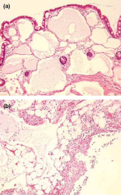 Hematoxylin and eosin stained sections of microscopic findings, magnification ×100. Mucosa and submucosa (a) show dilated lymphatics. Serosal fat (b) shows dilated lymphatics with evidence of acute inflammation