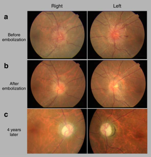 Photographs showing optic discs before and after treatment. (a) Optic disc on the first visit. (b) Optic disc three months after transarterial and transvenous embolization therapy. (c) Optic disc four years after embolization therapy.