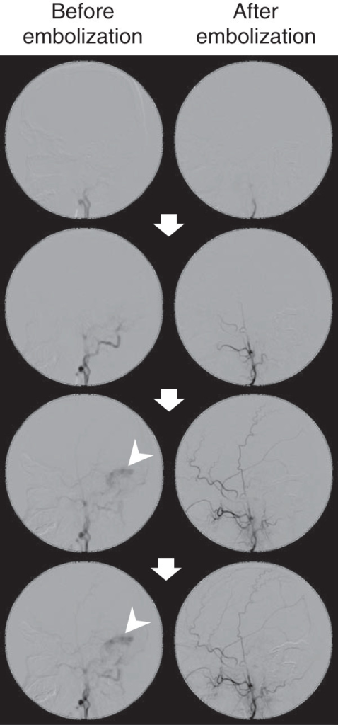 Angiography before and after embolization therapy. Right external carotid angiography (lateral view) demonstrates blood flow into the sigmoid sinus venosus (arrowheads) through the dural arteriovenous fistula. Paired photographs show images of the same phases after embolization therapy. Arrows indicate the time course, from top (early) to bottom (late).