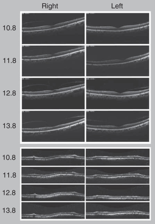 Images of macula and retina around the disc, analyzed by optical coherence tomography over the last three years.