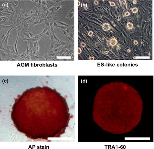 Characterization of aorta-gonado-mesonephros (AGM) fibroblast-derived colonies formed by transduction of reprogramming factors. Representative phase-contrast images of (a) AGM fibroblasts and (b) abnormally reprogrammed cells (ARCs) forming round-shaped colonies. (c) Representative image showing expression of alkaline phosphatase (AP) activity in ARCs. (d) Immunocytochemical staining showing expression of TRA1-60 in ARCs. Bar = 100 μm.