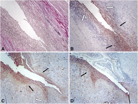 FAP expression is strongly detectable in myofibroblasts adjacent to fibrotic areas. Representative images show (A) van-Gieson staining and (B) corresponding FAP staining in fibrotic tissue samples derived from CD patients. (B-D) FAP staining is strongly detectable in myofibroblasts adjacent to the fibrotic areas (black arrows), while FAP staining in myofibroblasts within fibrotic areas is limited (white arrows). Magnification: 10-fold. All analysed patient samples showed comparable staining characteristics when compared to samples from non-affected controls.
