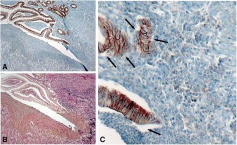 Subepithelial cells in and around fibrotic areas express E-cadherin. Representative images show E-cadherin (A; C) and van-Gieson (B) staining in corresponding tissue sections. Black arrows point onto E-cadherin positive cells. Magnification: 10-fold or 40-fold, respectively. All analysed patient samples showed comparable staining characteristics when compared to samples from non-affected controls.