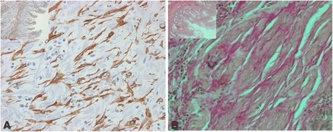 Subepithelial cells in and around fibrotic areas express α-SMA. Representative images show α-SMA (A) and van-Gieson (B) staining in corresponding tissue sections. Magnification: 10-fold or 40-fold, respectively. All analysed patient samples showed comparable staining characteristics when compared to samples from non-affected controls.