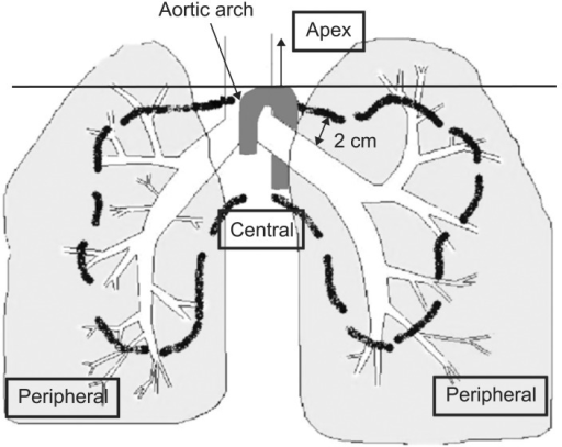 Schema of central and peripheral locations. This diagram showed definition of central, peripheral and apical location of lung tumor. Tumors located at proximal bronchial tree (according to the Radiation Therapy Oncology Group) defined as centrally located tumor, tumor located above aortic arch defined as apically located tumor, and tumor located closer than 1 cm to chest wall defined as chest wall abutted. Except of these locations, others defined as peripherally located tumor.