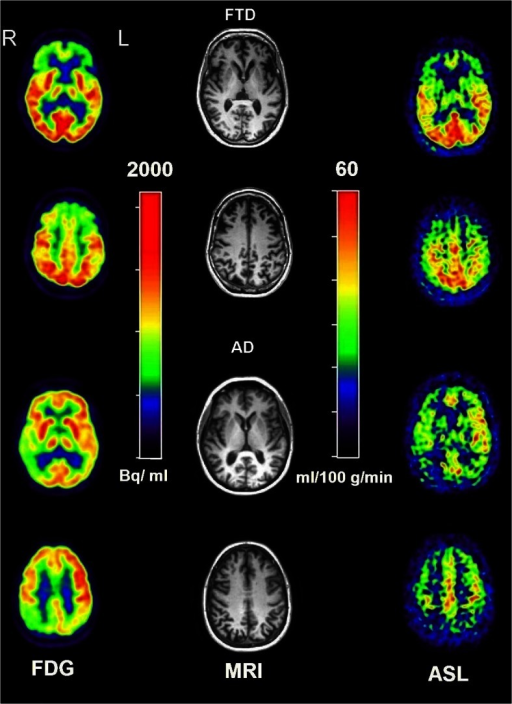 Transversal FDG and ASL images of an FTD (first and second rows, MMSE 26) and an AD (third and fourth rows, MMSE 17) patient with early-onset disease. Both transversal planes show predominantly prefrontal abnormalities in FTD and parietal abnormalities in AD. Red colour reflects normal metabolism and perfusion
