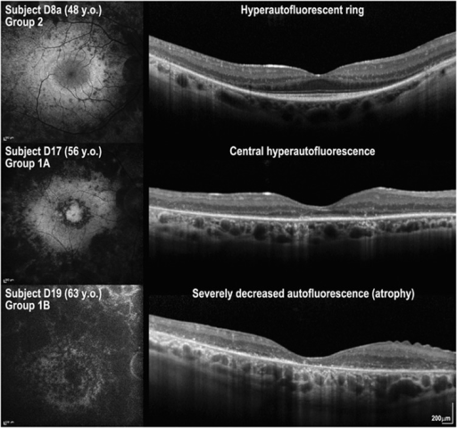 Fundus autofluorescence (FAF) imaging and foveal OCT scans of three patients with USH2A retinopathy. Three patterns were observed: (i) a hyperautofluorescent ring on FAF and preserved photoreceptor inner segment ellipsoid line in the area within the hyperautofluorescent ring on OCT (subject D8a; top row); (ii) central hyperautofluorescence on FAF and absent photoreceptor inner segment ellipsoid line on OCT (subject D17; middle row), and (iii) severely decreased autofluorescence on FAF and absent outer retina layers with thinning of the retinal pigment epithelium/Bruch's membrane complex band (subject D19; bottom row). Y.o., years old.