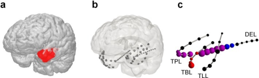 Neuroanatomical representation of resected brain tissue (RBT, panel a), intracranial electrode localization (b) and relative contribution of each contact to the normalized node strength of the surrogate corrected mutual information matrix M (c) for patient I-2 (first seizure).The spheres in panel c are centered at the positions of the intracranial electrode contacts. Their volume is proportional to the peri-ictal channel-wise mean of the node strength. The implantation scheme in this patient was fully symmetric. For simplicity, only electrodes in the left hemisphere are shown in panel c. The color code is as follows: red, channels included in the RBT; blue, channels belonging to the SOZ; magenta, overlap OVL, i.e. channels that were resected and belonged to the SOZ; black, channels NON that neither belonged to the RBT nor to the SOZ. Channel labels are: TPL, temporo-polar left; TBL, temporo-basal left; TLL, temporo-lateral left; DEL, depth electrode left. A movie showing the contribution of all four measures on the implantation scheme of the left hemisphere in 3D is available in the supplementary material (S1 Movie).