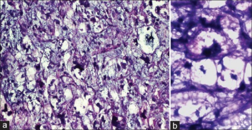 (a and b) (H and E, ×100, a; ×400, b) Characteristic vacuolated lipoblasts in a loose, myxoid background