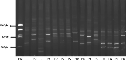 Acrylamide electrophoresis gel showing PCR-HDA patterns of DNA samples obtained from intestinal contents of wild T. infestans: lane 1, molecular weight; lanes 3 and 12, P2 HDA pattern (G. musteloides); lanes 5 and 11, P1 HDA pattern (O. gliroides); lanes 6, 7 and 8, P7 HDA pattern (G. musteloides); lane 9, P12 HDA pattern (A. glaucinus); lanes 10 and 16, P6 HDA pattern (O. gliroides); lanes 13, 14 and 15, P5 HDA pattern (G. gallus); lanes 2 and 4, multibanding patterns corresponding to multiple meals