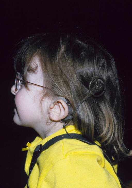 CHARGE syndrome: unusually shaped ears showing cochlear transplant.