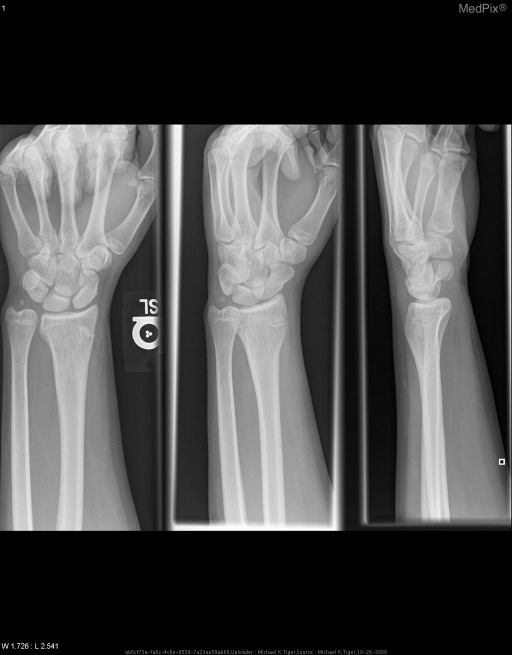 This image shows positive ulnar variance, and a prematurely ossified distal radial physis.
