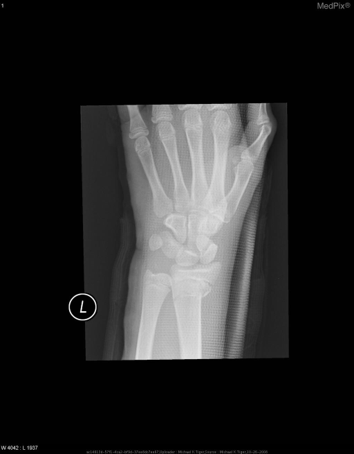 This image shows the patient's  fracture at the lower radial metaphysis extending into the physis.