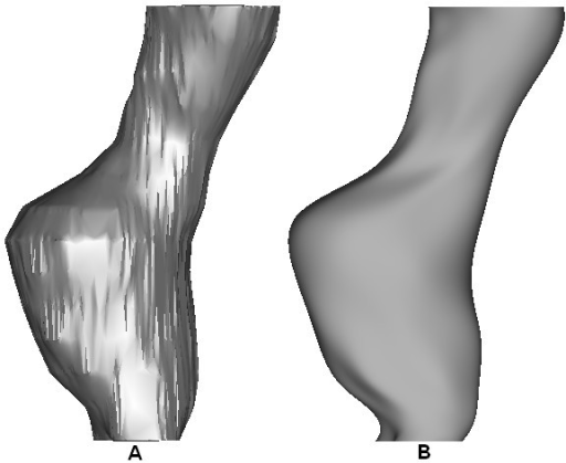 Effect of smoothing on the reconstructed AAA. The optimum smoothing factor removes unwanted surface detail without over-smoothing the AAA. (A) Shows the rough model without smoothing and (B) shows the effect of a 20 control point axial smoothing factor. Model shown in the lateral view.