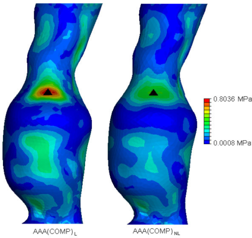 von Mises wall stress distributions for both the AAA(COMP)L and AAA(COMP)NL models at an internal pressure of 120 mmHg. Wall stress results are normalised to the peak stress found AAA(COMP)L. The black mark indicates the region of peak wall stress. Models are shown in the anterior view.
