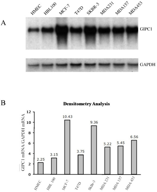 GIPC1 RNA expression analysis in normal and neoplastic cell lines. Panel A: Northern blot analysis of total RNA was performed with RNA samples from a human microvascular endothelial cell line (HMEC), normal breast epithelium cell line HBL100 and breast cancer cell lines MCF-7, T47D, SK-BR-3, MDA231, MDA157 and MDA453. A probe for the GAPDH gene was used to normalize expression. Panel B: Densitometry analysis of the Northern blot was performed to quantitate the mRNA expression. The data indicates that the GIPC1 gene is upregulated in breast cancer cell lines.