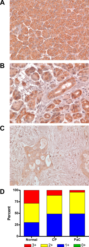 Desmoglein 2 staining is lower in pancreatic cancer cell membranes compared to normal and chronic pancreatitis tissue. Representative pancreatic tissue sections stained for Dsg2 showed high levels of membrane staining in (A) normal pancreas and (B) chronic pancreatitis (CP) samples. Membrane staining was much weaker in (C) pancreatic adenocarcinoma (PaC) samples. Original magnification x400. (D) Staining intensity of the cell membranes was quantitated (see Methods), categorized into intensity ranges from 0+ to 3+, and the average percentage of cells in each group was determined and represented in a stacked graph for each tissue type (n = 6).