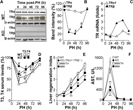 TRβ is transiently downregulated after PH and liver regeneration is delayed in TRα1/TRβ double KO mice.(A,B) WT and TRα1/TRβ KO mice ('KO') were submitted to 70% PH, and the protein levels of TRα1 (55 kDa) and TRβ (47 kDa) were determined by Western blot, and expressed as percentage of the normalized band intensities (using β-actin as control) vs. sham operated animals at 0 h. (C) mRNA levels of TRα1 and TRβ were determined by quantitative real time RT-PCR. (D) The serum levels of T3 and T4 after PH were measured and expressed as percentage vs. sham operated animals at 0 h. The basal values were 7.4±0.5 and 36.5±4.2 µg/dl for T4 in WT and KO, respectively; 78±5 and 2965±307 ng/dl for T3 in WT and KO, respectively. (E) Liver mass recovery after PH was determined in these animals and in WT mice treated with MMI to pharmacologically induce hypothyroidism, and in one group of animals thyroid hormone was restituted by administration of T4. (F) Acute liver injury after PH was evaluated by measuring serum AST levels. Results show means ± SD of 6 to 8 animals per condition (B,C,E,F), 4 animals (D) or a representative blot of three (A). #P<0.01 vs. the corresponding condition at 0h (B,D); *P<0.05, **P<0.01 vs. WT condition or T4-untreated WT animals (E,F).