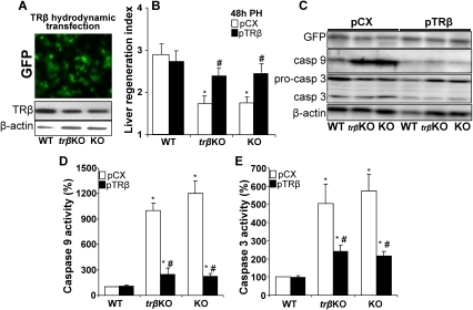 Hydrodynamic transfection of TRβ restores liver regeneration index and impairs caspase activation in regenerating liver of TR KO mice.Before PH, animals (WT, TRβ single KO and TRα1/TRβ double KO mice, referred as 'KO') were transfected hydrodynamically with GFP and TRβ expression vectors, or the TRβ-void vector pCX. The expression of GFP and the levels of TRβ (A), the liver mass regeneration index (B) and the levels of procaspase 3 and caspases 3 and 9 (C) were determined 48 h after PH. (D,E) Activities of caspase 9 and caspase 3 using specific peptide substrates were determined in liver extracts obtained 48 h post-PH. Results show the mean ± SD of 5 animals per condition (B,D,E) or a representative section or Western blot out of three (A,C). *P<0.01 vs. the WT condition; #P<0.01 vs. animals of the same genotype transfected with control TRβ-void vector (pCX).