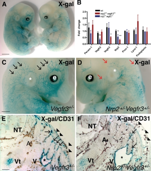 Abnormal lymphatic development in double-heterozygous nrp2+/−vegfr3+/− mice. (A) X-gal staining (blue) of E13.5 vegfr3+/− (left) and double-heterozygous nrp2+/−vegfr3+/− (right) littermate embryos. (B) expression levels of lymphatic marker genes as measured by quantitative PCR in RNA isolated from hearts of wild-type and double-heterozygote nrp2+/−vegfr2+/− and nrp2+/−vegfr3+/− mice. Values significantly different from wild-type mice (*, P > 0.05; **, P > 0.001) by Student's t test are shown. Error bars indicate SEM. (C and D) Higher magnification of heads of embryos shown in A. Note numerous lymphatic vessel sprouts in vegfr3+/− (black arrows) and fewer enlarged lymph vessel sprouts in nrp2+/−vegfr3+/− (red arrows). e, eye; *, ear. (E and F) Transverse section through the neck of E13.5 embryos double stained with X-gal (blue) and CD-31 (brown). Note similar development of CD-31–positive arteries, veins, and skin capillaries (arrowheads) in vegfr3+/− (E) and nrp2+/−vegfr3+/− (F). Note enlarged jugular lymph sacs (asterisks) in nrp2+/−vegfr3+/− (F) compared with vegfr3+/− (E). Lymph vessels sprouting from the lymph sac toward the skin are less numerous in nrp2+/−vegfr3+/− compared with vegfr3+/− (arrows). A, arteries; V, veins; NT, neural tube; Vt, vertebra. Bars: (A) 1.4 mm; (C and D) 0.8 mm; (E and F) 150 µm.