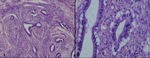 Histopathological characteristics of MDA. Microscopically, the lesion was characterized by mucinous glands which resembled normal endocervical glands, but showing distinct nuclear anaplasia or evidence of stromal invasion (A). Mitotic figures might be found (B). (A, Magnification × 100; B, Magnification × 400)