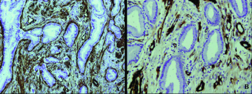 The immunohistochemical staining of SM-actin. The stromal cells were also positive for SM-actin in both MDA and the normal cervical tissues, but the stromal cells with SM-actin positive reactivity were more abundant in MDA (A) than in the normal cervical tissues (B).