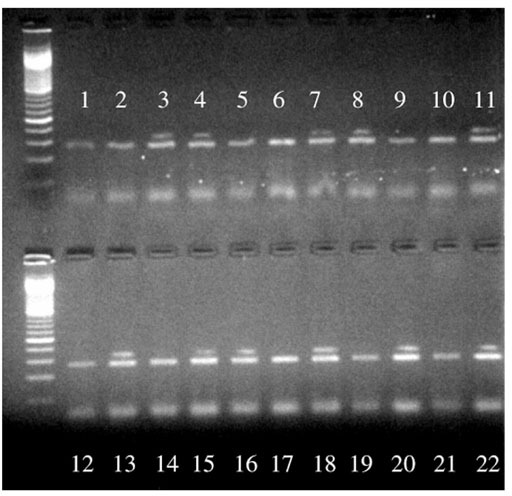 Ethidium-bromide-stained agarose gel after RT-PCR amplification of MDR1 mRNA. The MDR1-expressing tumors are demonstrated by the presence of a 168 base-pair band, above the β-globin positive control (lanes 3, 4, 7, 8, 11, 13, 15, 16, 18, 20 and 22).