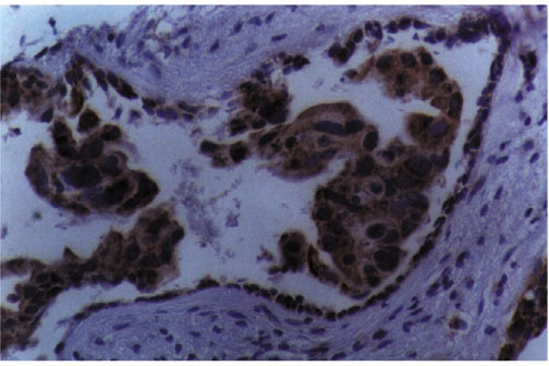 Strong reactivity with the LRP-56 monoclonal antibody of breast cancer tumor cells, as opposed to the inert stromal background. Streptavidin-biotin-peroxidase staining. Magnification ×400.