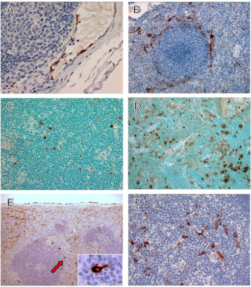 Immunohistochemistry and TUNEL staining in lymphoid tissues of cynomolgus monkeys. (A) Immunopositive endothelial cells (brown) in an axillary lymph node at day 13. (B) Immunopositive tissue macrophages and dendritic cells (brown) in spleen at day 7. (C) TUNEL-positive (brown) lymphocytes and scattered tingible body macrophages in an axillary lymph node at day 7. (D) TUNEL-positive (brown) lymphocytes and scattered tingible body macrophages in an axillary lymph node at day 17. (E) Immunopositive tissue macrophages, endothelial cells, and dendritic cells (brown) in spleen at day 13. Inset is enlargement of indicated area (arrow) showing dendritic cell. (F) Immunopositive dendritic cells (brown) in thymus at day 7. Original magnifications, ×40 (A), ×20 (C, F), ×10 (B, D, F).