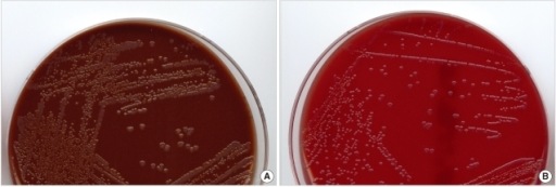 preparation of chocolate agar pdf