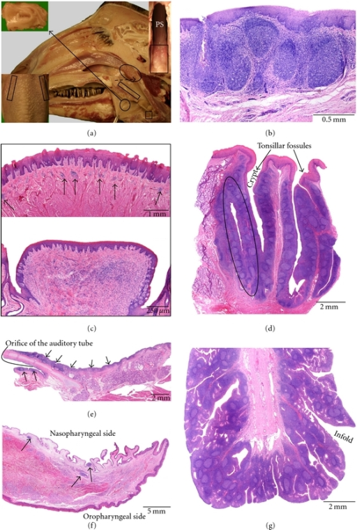 Anatomical localization and histological characteristic | Open-i
