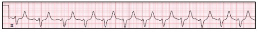 EKG from the patient's admission showing atrial fibrillation with rapid ventricular response and peaked T waves.