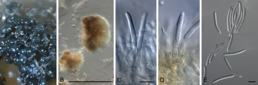 Stromatoseptoria castaneicola (CBS 102320). A. Colony sporulating on MEA. B. Stroma giving rise to conidiogenous cells. C, D. Conidiogenous cells. E. Conidia. Scale bars: B = 200 μm, all others = 10 μm.