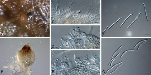 Xenoseptoria neosaccardoi (CBS 128665). A, B. Pycnidia forming in culture. C-E. Conidiogenous cells. F, G. Conidia. Scale bars: B = 170 μm, all others = 10 μm.