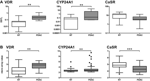 mRNA expression of the VDR and CYP24A1 is significantly increased and CaSR expression decreases in PDAC compared with adjacent non-tumorous (NT) parts of the pancreas. (A) mRNA expression (n = 11) was assessed by qRT-PCR and set relative to calibrator. (B) Data originate from a microarray analysis of mRNA from patients suffering from PDAC [28]. Median, interquartile range and whiskers according to Tukey are shown. Statistics were calculated using paired t-test on log2-transformed data. Among the values for CYP24A1 expression we identified one outlier in each dataset. (**p < 0.01, ***p < 0.001).