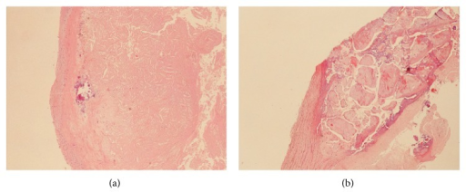 Details of two cases of carotid plaque with low-grade calcification (a) and high-grade calcification (b), respectively. Haematoxylin-eosin stain, magnification 10x.