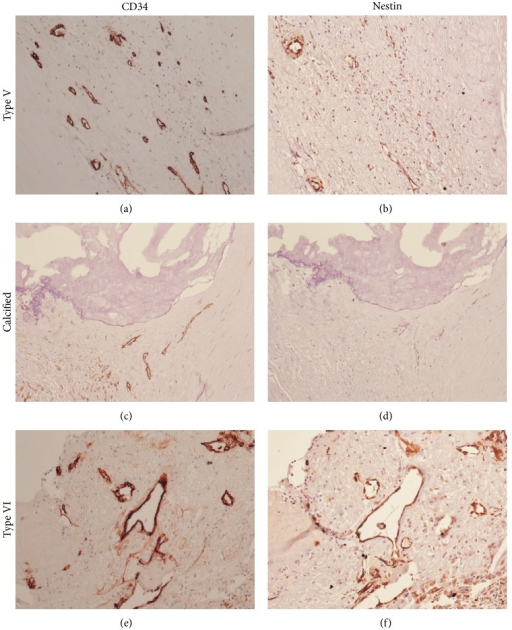 Immunohistochemical staining for CD34 (a), (c), and (e) and Nestin (b), (d), and (f) in an uncomplicated noncalcified plaque (a) and (b), a calcified plaque (c) and (d), and a complicated noncalcified plaque (e) and (f). Neoangiogenesis in uncomplicated plaques is generally Nestin-negative. The overall neoangiogenesis in calcified plaques (complicated or not) is generally lower (both CD34 and Nestin) than in complicated plaques. Magnification 20x.