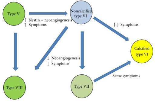 Flowchart illustrating the hypothetical plaque progression in relation to the Nestin-positive neoangiogenesis and calcification features. According to AHA classification [10], type V plaque is the uncomplicated fibroatheroma, type VI is the complicated plaque, type VII is the calcified plaque, and type VIII is the fibrotic plaque.