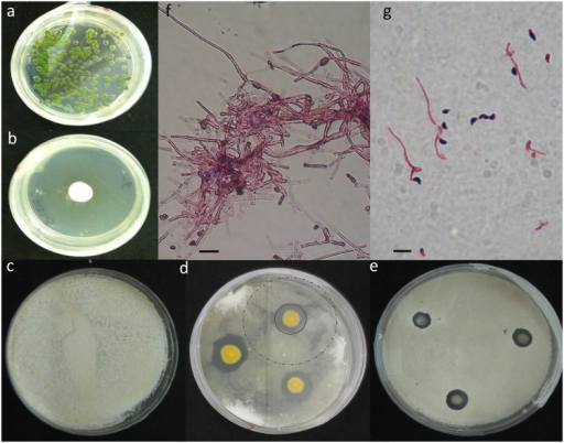 Challenge plates showing the inhibition of Pseudogymnoascus destructans.Bacteria were plated with an initial starting concentration of 104 cfu/ml (PF2). The plate (a) shows no visible P. destructans growth on day 43, compared to the (b) control plate showing uninhibited P. destructans colony growth at day 43. (d) The zones of inhibition produced by one of the top performing P. fluorescens isolates (PF2) compared to the sham inoculated control (c) and a widely used strain of P. fluorescens, (e; PF7: PfA506). There are two distinct zones of inhibition produced by the top performing strain (as shown in panel d) indicated by the grey solid circle and the dashed grey circle. Microscopic images of the inner and outer zones are shown in panels (f) and (g). We used gram staining techniques to help better visualize conidia (purple) and hyphae (pink) (scale bars, 10 μm). Within the first zone, indicated by the dark ring surrounding the yellow bacteria colony (PF2), the bacteria either arrested or delayed conidia growth, (g) which can be seen by the small hyphael extension from the conidia. Outside of this first zone, the growth of P. destructans was much more extensive (f), producing a mycelial network before its growth was arrested.