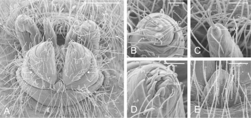 SEM images of Citharocepsfidicina, female from La Jolla, San Diego (CAS 9039517). A Spinnerets, ventro-posterior view, white arrows indicate the ALS basal segment transverse membrane B right PLS, posterior view C left PMS, posterior view D left ALS, posterior view E colulus in ventral view.