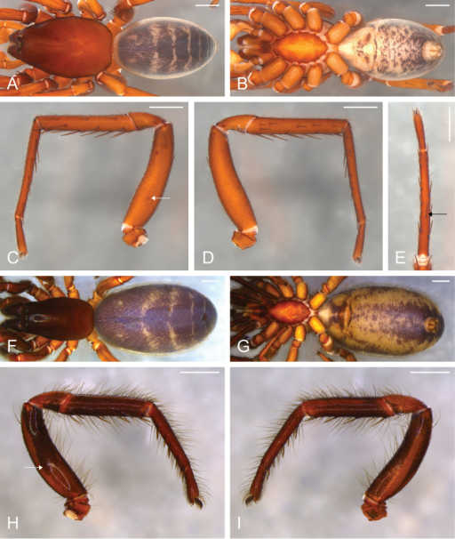 Citharocepscruzana. Male from Santa Cruz Island, California (CAS 9046542) (A–E) female from Coast Ridge Trail, California (CDU) (F–I). A, F habitus, dorsal view B, G habitus, ventral view C right leg I, prolateral view D same, retrolateral view E right metatarsus and tarsus I, ventral view, black arrow indicates the ventral median spine H left leg I, prolateral view I same, retrolateral view; white arrows indicate the stridulatory thorn. Scale bars: 1 mm.