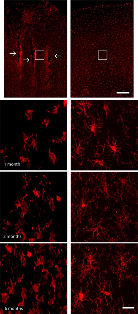 Microglial immunoreactivity across electrode tracks.(a). Electrode implantation sites (arrows) were identified as a well-defined strip of microglial labeling, especially in latter survival time point. (b). Iba1-reactive microglial cells with a hypertrophic morphology were observed only in the vicinity of implants, whilst microglial cells presented a non-activated morphology in the contralateral hemisphere, possessing stellate non-hypertrophic cell bodies and thin and elongated processes. Activated microglial cells were not observed far from implant sites neither in contralateral hemispheres. White squares in lower magnification pictures indicate the regions where enlargements were obtained in all groups. Left column of the figure: implanted hemisphere; right column of the figure: contralateral hemisphere, adopted as control. Scale bar: 100 μm (lower magnification); 25 μm (enlargements).